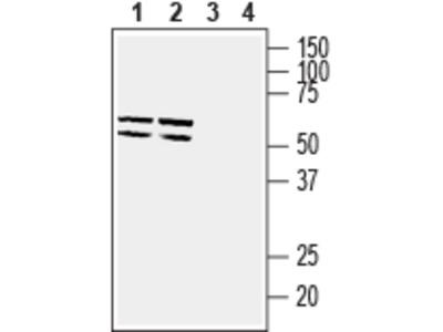Anti-GLUT5 (SLC2A5) Antibody