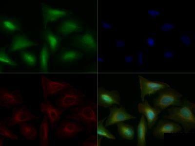 Anti-TLR4 antibody