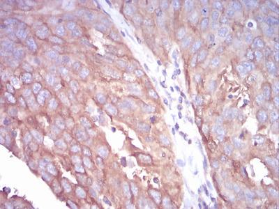 Tubulin Beta 1 (TUBB1) Antibody