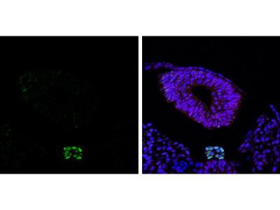Brachyury Polyclonal Antibody