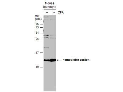 HBE1 Polyclonal Antibody