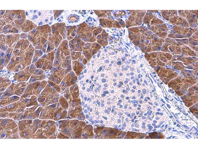 PNLIP Monoclonal Antibody (GT1777)