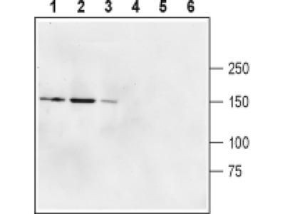GluD2 (extracellular) Polyclonal Antibody