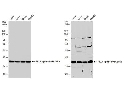 PP2A alpha/beta Polyclonal Antibody