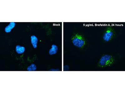 CYR61 Polyclonal Antibody