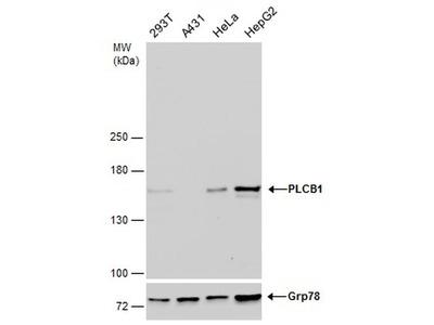 PLCB1 Antibody