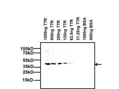 TTR Monoclonal Antibody (2E10C5)