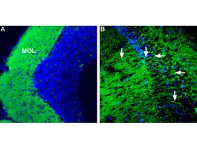 CRHR1 (extracellular) Polyclonal Antibody