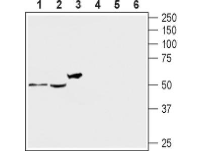 HTR2A (extracellular) Polyclonal Antibody