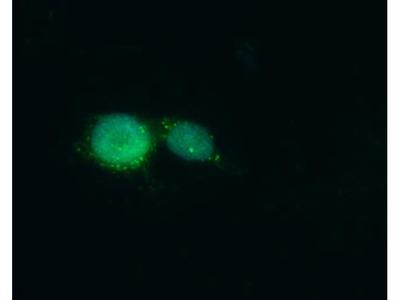 MED10 Polyclonal Antibody