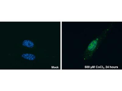 HIF-2 alpha Monoclonal Antibody (GT125)