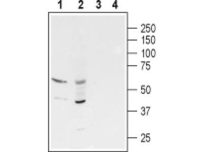 GABRR3 (extracellular) Polyclonal Antibody