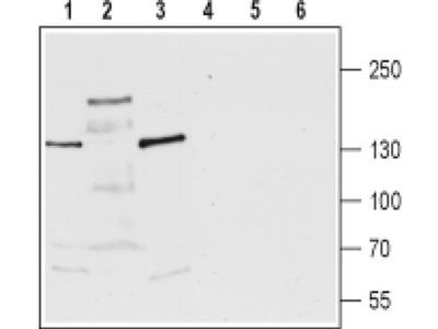 TRPM3 (extracellular) Polyclonal Antibody