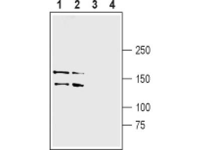 LRRK1 Polyclonal Antibody