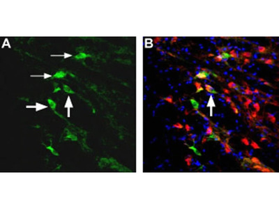 NMDAR2D (extracellular) Polyclonal Antibody