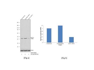MAT1A Recombinant Polyclonal Antibody (7HCLC)