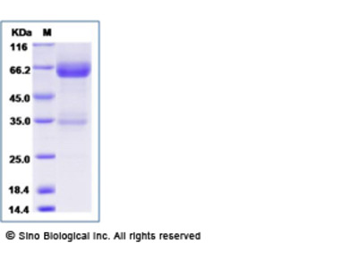 Human LTBR / TNFRSF3 Protein (Fc Tag)