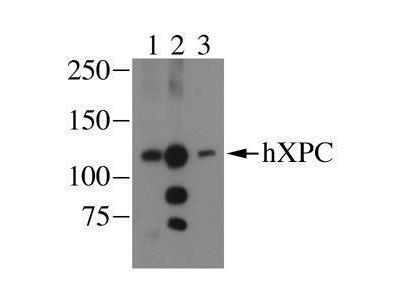 Anti-XPC antibody