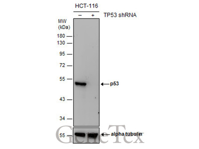 Anti-p53 antibody [DO1]