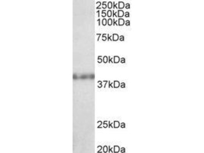 Anti-SUV39H2 antibody, C-term