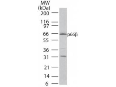 Anti-p66 beta antibody