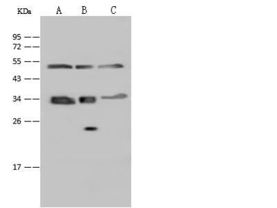 SUCLG1 Antibody, Rabbit PAb, Antigen Affinity Purified