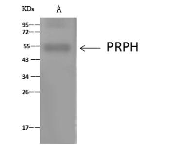 PRPH/Peripherin Antibody, Rabbit PAb, Antigen Affinity Purified
