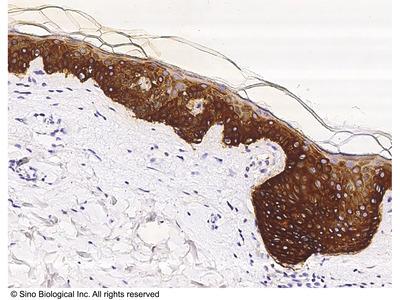Cytokeratin 14/KRT14 Antibody, Mouse MAb
