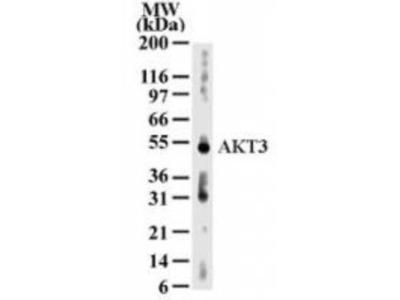Anti-AKT3 antibody [66C1247]