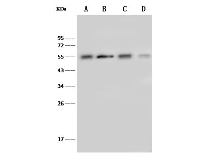 TUBB4A Antibody, Rabbit PAb, Antigen Affinity Purified