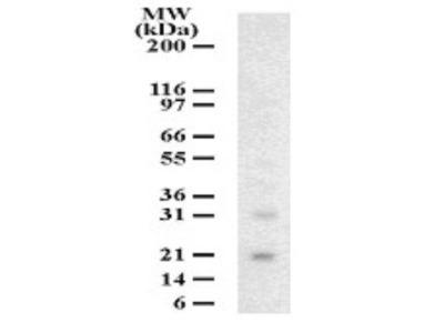Anti-DUT-N antibody