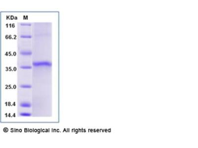 Human SIRT5 Protein (Flag Tag)