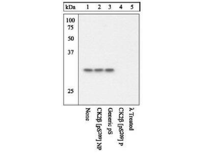 Anti-Casein Kinase 2 beta (phospho Ser209) antibody