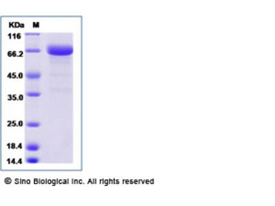 Human LRRC32 Protein (His Tag)
