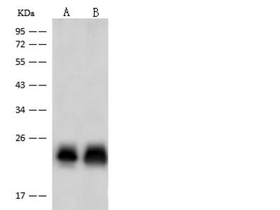 TNNI2 Antibody, Rabbit PAb, Antigen Affinity Purified