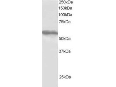 Anti-TRIM4 antibody