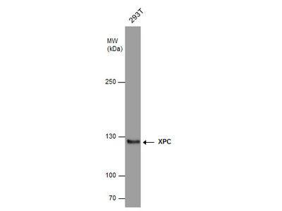 Anti-XPC antibody [3.26]
