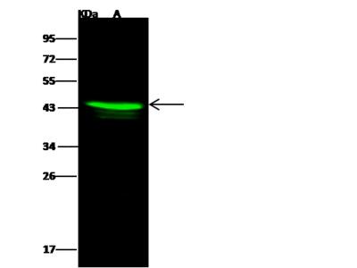 ACAA1/Peroxisomal 3-oxoacyl-CoA thiolase Antibody, Rabbit PAb, Antigen Affinity Purified