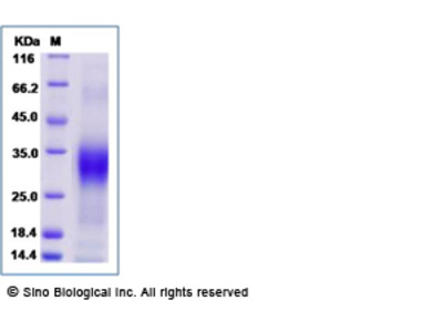 Human Sclerostin / SOST Protein (His Tag), Biotinylated