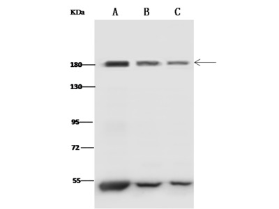 CLTC Antibody, Rabbit PAb, Antigen Affinity Purified