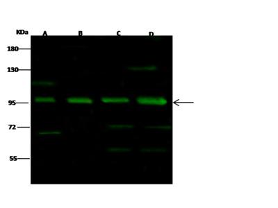 NFATC1 Antibody, Rabbit PAb, Antigen Affinity Purified