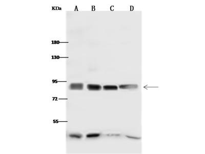 P5CS/ALDH18A1 Antibody, Rabbit PAb, Antigen Affinity Purified