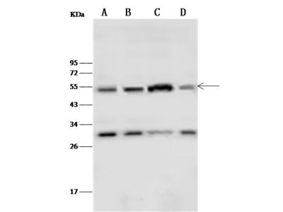 IL11RA/IL-11RA Antibody, Rabbit PAb, Antigen Affinity Purified