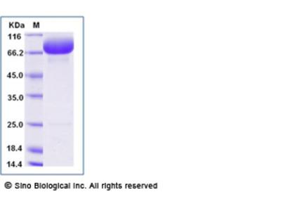 Human SIRP alpha / CD172a Protein (Fc Tag)