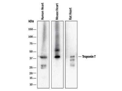 Troponin T (Cardiac) Antibody