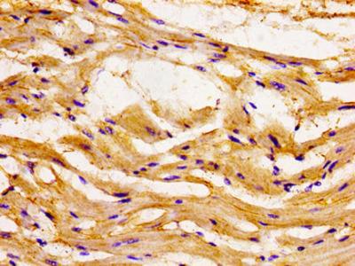 CCL15 / MIP5 Antibody