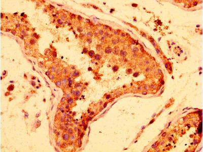 HUFI-2 / LRRFIP2 Antibody