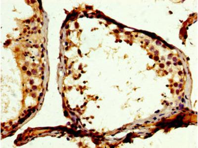 PTP-PEST / PTPN12 Antibody