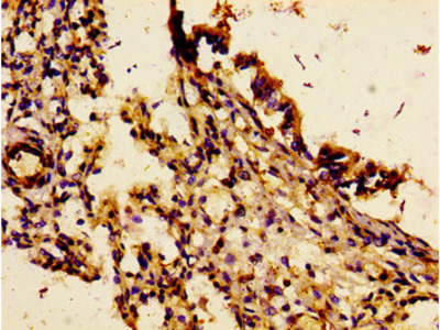 CDw218a / IL18R1 Antibody