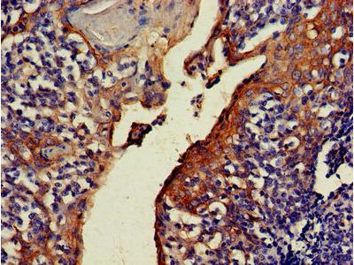NOA1 / C4orf14 Antibody